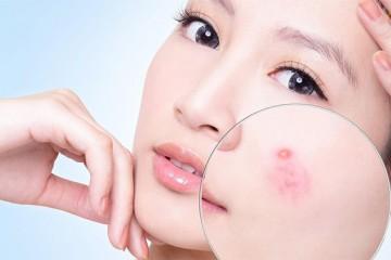 Nhiễm trùng da và những điều cần biết